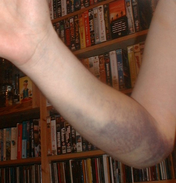how to fall down stairs and break your arm